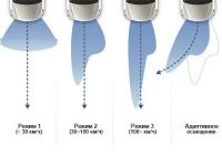 Система адаптивного переднего освещения (AFLS)